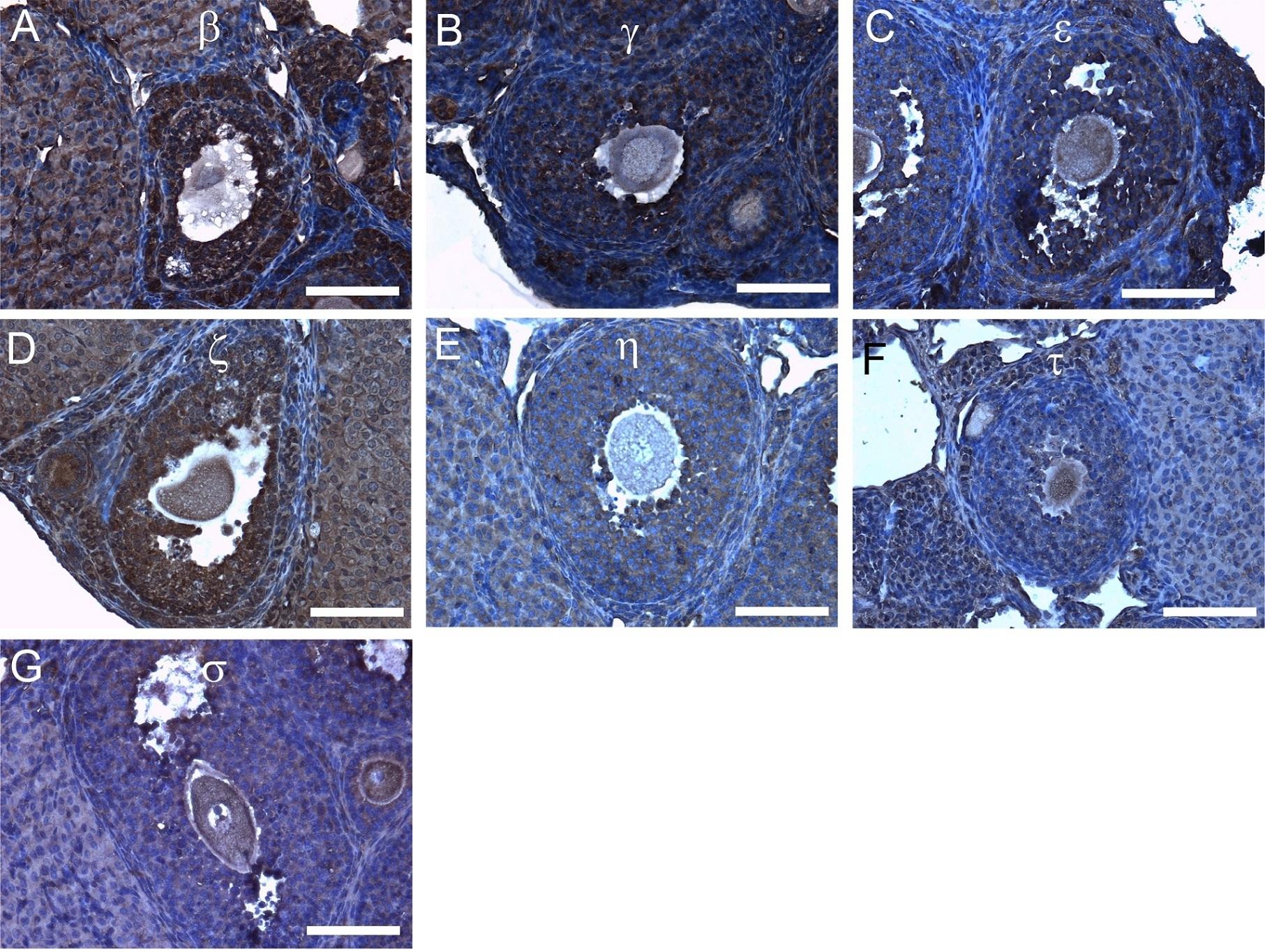 Anti 14-3-3 tau/theta Antibody thumbnail image 4