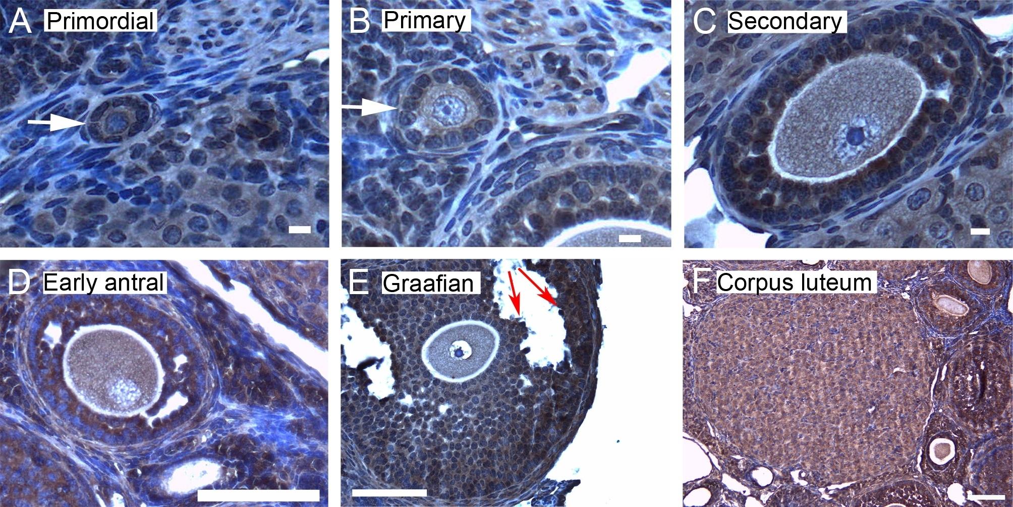 Anti 14-3-3 Zeta/Delta Antibody thumbnail image 4