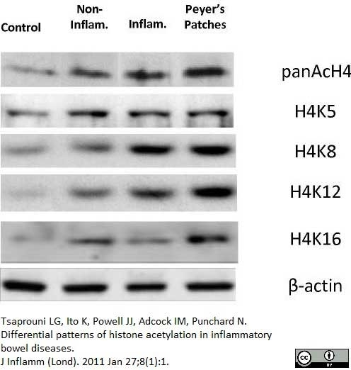 Anti Histone H4 (Ac12) Antibody thumbnail image 2