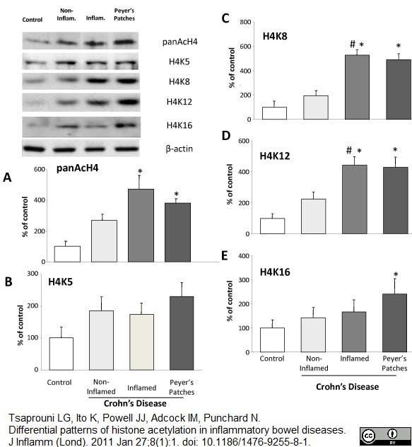 Anti Histone H4 (Acetylated) Antibody thumbnail image 3