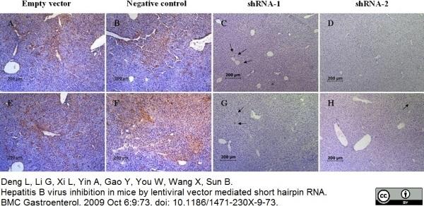 Anti Hepatitis B Surface Antigen Antibody thumbnail image 2