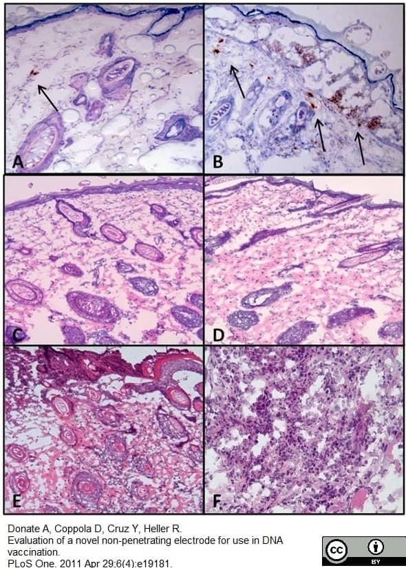 Anti Hepatitis B Surface Antigen Antibody thumbnail image 3