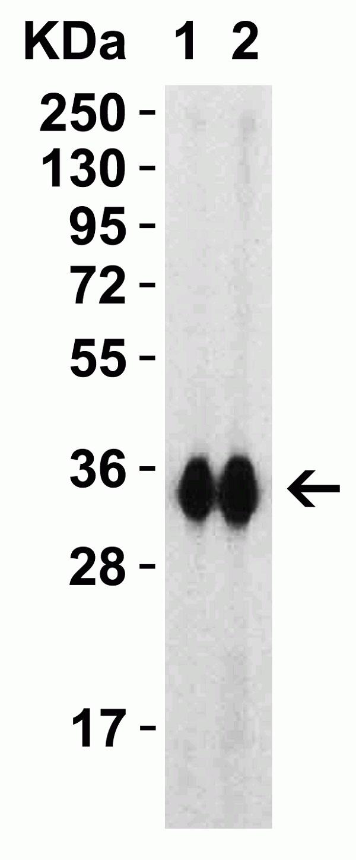 Anti SARS-CoV-2 Spike Protein Rbd Antibody thumbnail image 1