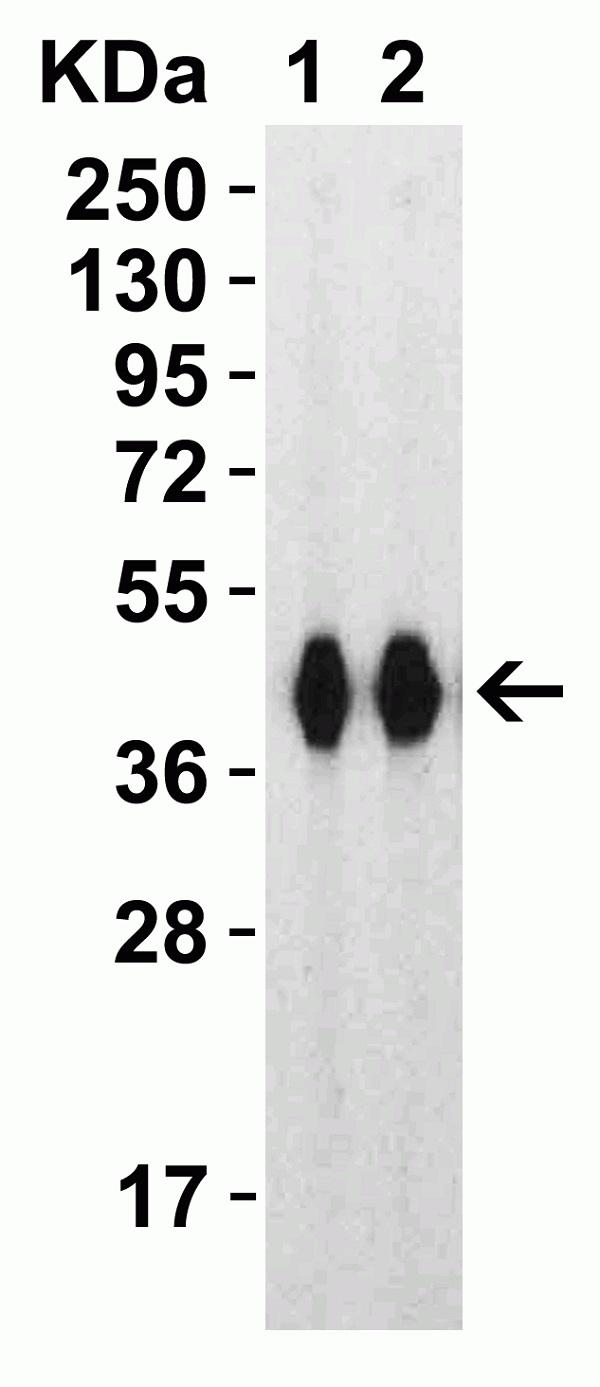 Anti SARS-CoV-2 Spike Protein Rbd Antibody thumbnail image 4