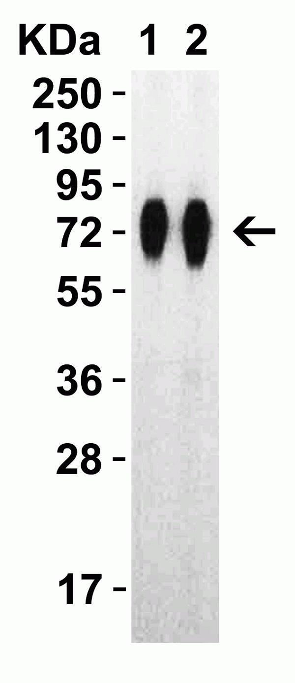 Anti SARS-CoV-2 Spike Protein Rbd Antibody thumbnail image 6