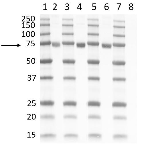 Anti SARS-CoV-2 Spike Protein S2 Antibody gallery image 1