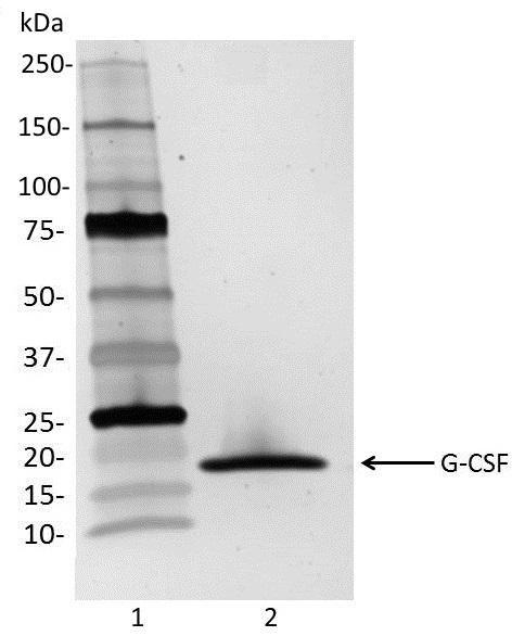 Recombinant Human G-CSF thumbnail image 1