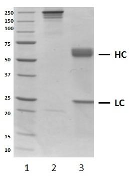 Recombinant Human IgA1 Kappa, clone AbD18705_hIgA1 thumbnail image 1