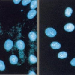 Mycoplasma Removal Agent gallery image 1